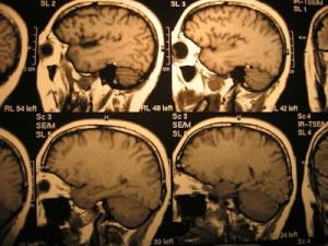 Algunas enfermedades mentales son causadas por traumatismos, embolias y derrames cerebrales.