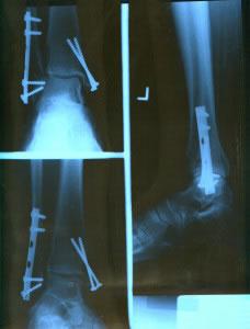 Radiografía de fracturas con clavos