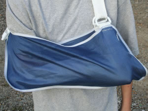 Brazo fracturado con bolsa para soporte