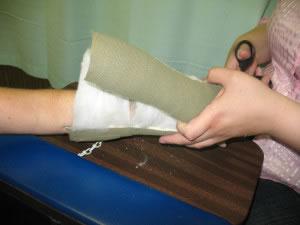 Cortando el yeso después de sanar una fractura