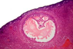 Célula germinal
