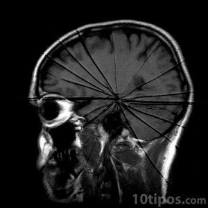 Tomografía con daño cerebral