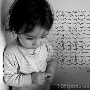 Niño pequeño con encefalograma
