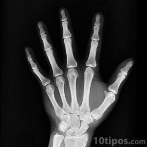 Vista de la mano human con rayos x