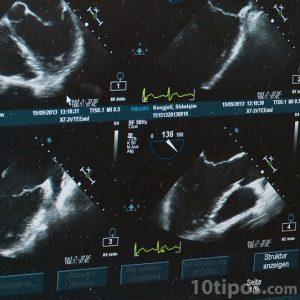 Ultrasonido de un bebé