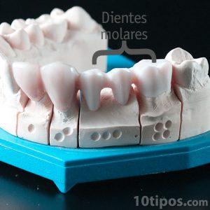 Modelo de diente de yeso